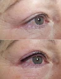 Micropigmentación de ojos Eye Liner